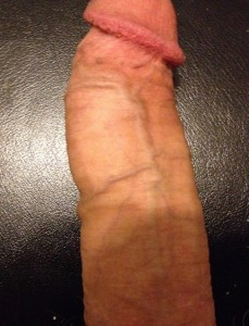 Danger de la chirurgie pénienne
